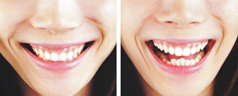 Links: geposeerde lach. Rechts: Spontane lach (Beeld: Getty Images)