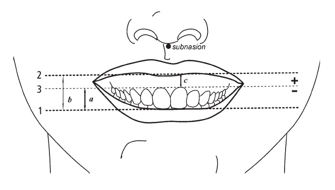 Measurement of lip line height; Line 1: the most incisal point of the central incisor; Line 2: the lip edge on the central incisor; Line 3: cervical margin of the central incisor. Lip line height is lip position minus tooth length.